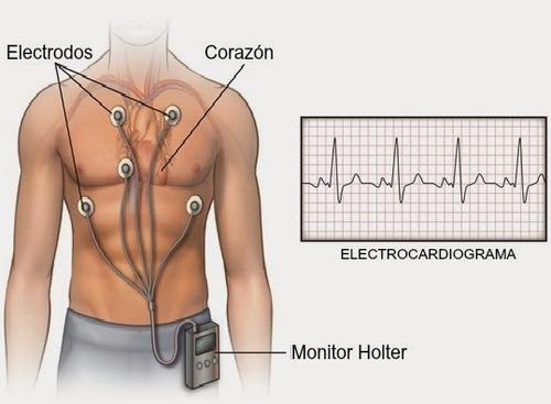 ¿Qué es y para qué sirve el Holter?